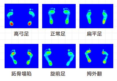 人体平衡状况,足弓指标,足部骨骼位置与翻转角度,左右脚足压对比,平衡